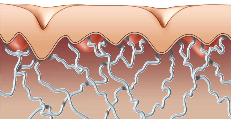 Дефицит коллагена в организме